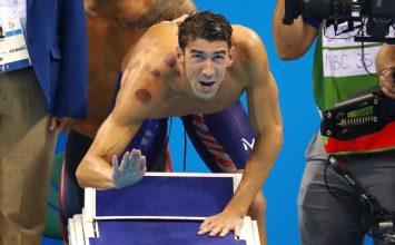 Ada Apa di Balik Populernya 'Bekam' di Olimpiade Rio?