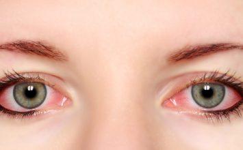 3 Hal tentang Mata Memerah yang Wajib Kamu Tau