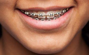 4 Tips Merawat Gigi Berbehel yang Wajib Kamu Lakukan