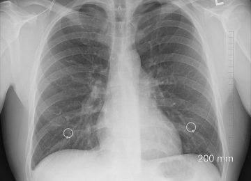 Mau Cegah Penularan Penyakit TB Paru? Cari Tahu di Sini!