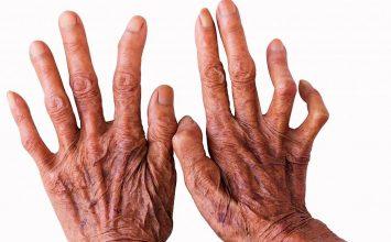 Inilah Bahaya Penyakit Kusta yang Wajib Kamu Pahami