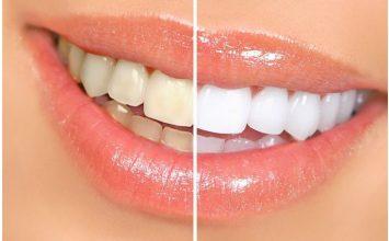 3 Penyebab Gigi Kuning yang Harus Kamu Hindari