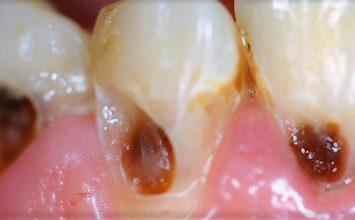 Ayo Cegah Karies Gigi dengan 4 Hal Ini