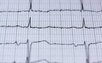 Cegah Penyakit Kardiovaskular dengan 6 Langkah CERDIK ini!