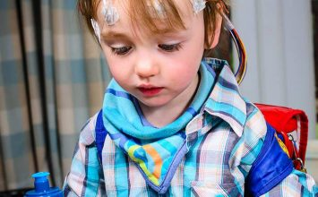 Epilepsi pada Anak dan Faktor Risikonya, Apa saja?