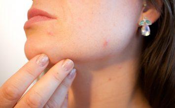 Fakta tentang Alergi Makanan yang Perlu Kamu Tau!