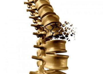 Kebiasaan Berikut Bisa Meruntuhkan Kekuatan Tulangmu